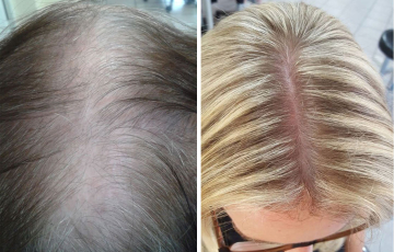 Comparison of a client before and after the Stop & Grow application